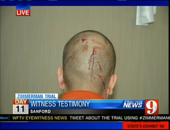 Zimmerman Trial State's Exhibit 56 - back of Zimmerman head