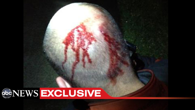 ht_george_zimmerman_head_dm_120419_wmain
